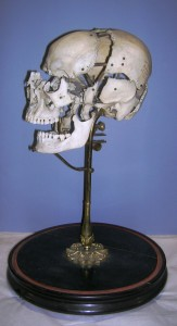 Beachene or 'exploded' skull, 19th century