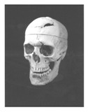 Skull of Phineas Gage [WAM 00949]