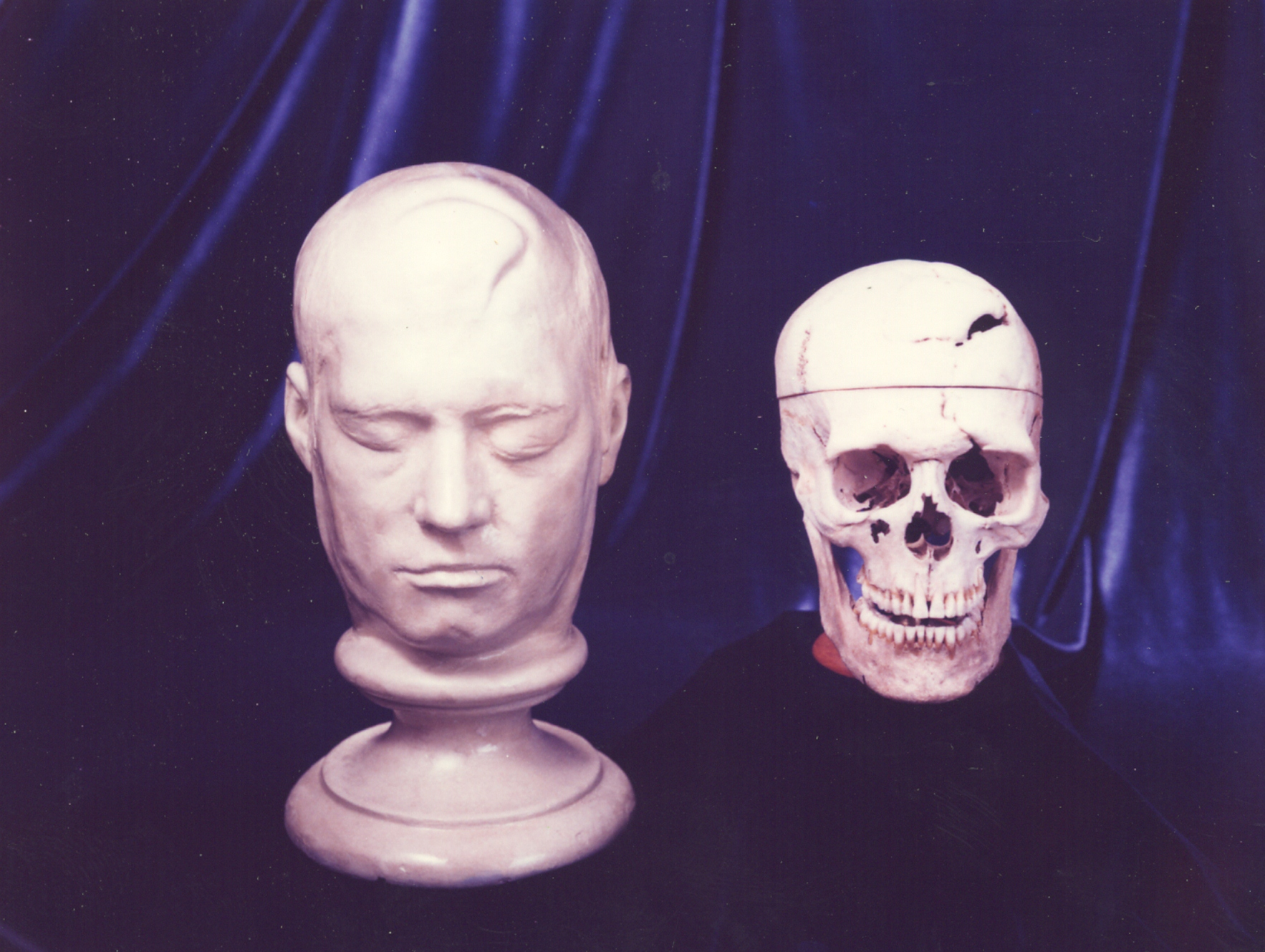 Skull and life mask of Phineas Gage, Warren Anatomical Museum, Francis A. Countway Library of Medicine, WAM 00949 & 00950