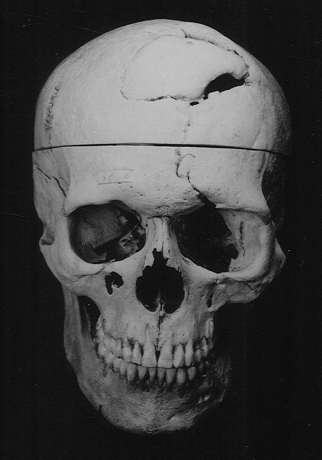 Skull of Phineas Gage, Warren Anatomical Museum in the Francis A. Countway Library of Medicine [WAM 00949]