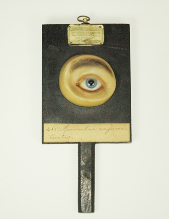 Wax teaching model of an eye with granular conjunctivitis, 1876, Warren Anatomical Museum in the Francis A. Countway Library of Medicine [04652]