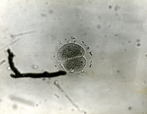 "Original Caption: ""This is a picture of the first human egg to be fertilized in a test tube (watch glass). It was taken by Dr. John Rock's associates at the Free Hospital for Women in Brookline, Mass. in 1944. Mrs. Miriam F. Menkin, Dr. Rock's research assistant, did the laboratory work on the experiment. The egg is in the two-cell stage. This photograph was taken after 45 hours incubation. It shows two blastomeres within zona pellucida. At the edge of zona pelliucida are numerous spermatozoa."""