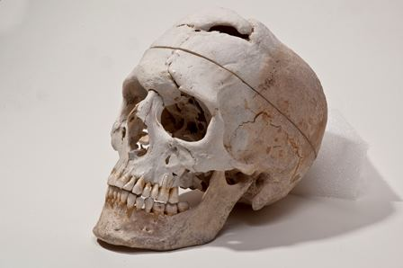 Skull of Phineas Gage, Warren Anatomical Museum in the Francis A. Countway Library of Medicine