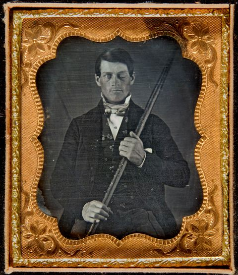 Wilgus Daguerreotype of Phineas Gage, 1850-1860. Warren Anatomical Museum in the Francis A. Countway Library of Medicine.
