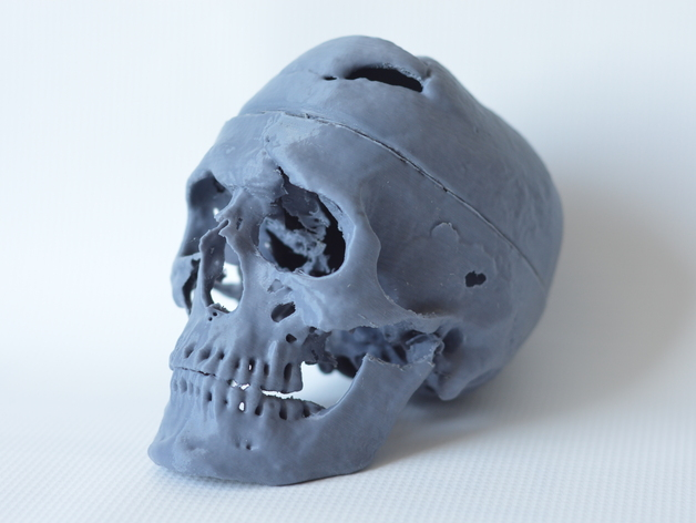 Phineas Gage 3D Print, Courtesy of Graham Holt, Laboratories of Cognitive Neuroscience, Boston Children's Hospital