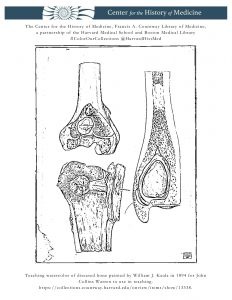 Teaching watercolor of diseased bone painted by William J. Kaula in 1894 for John Collins Warren to use in teaching.